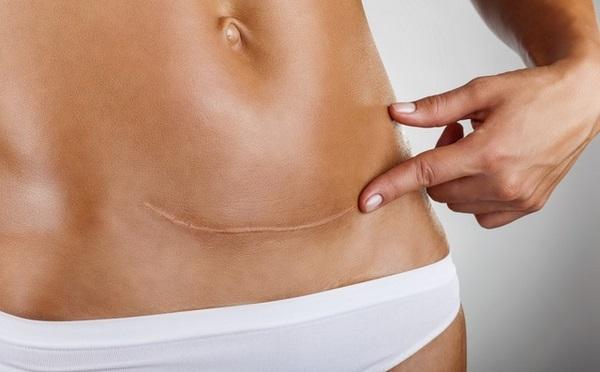 Giảm mỡ bụng sau sinh mổ khác gì so với sinh thường?