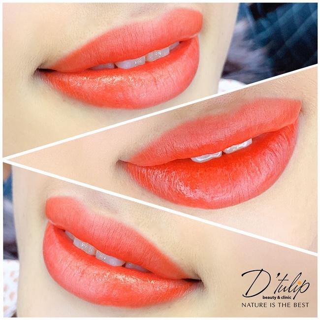 Có nên phun môi không tại D'tulip Beauty and Clinic