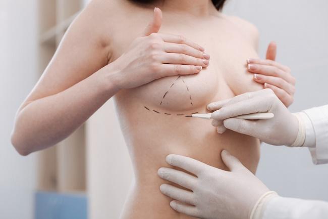 Dịch vụ thẩm mỹ ngực tại Sài Gòn Venus