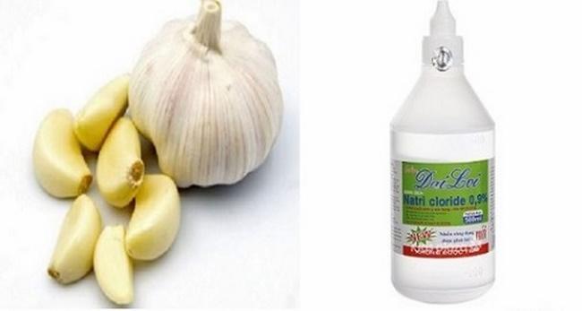 Điều trị mụn bằng tỏi và dung dịch muối natri clorid
