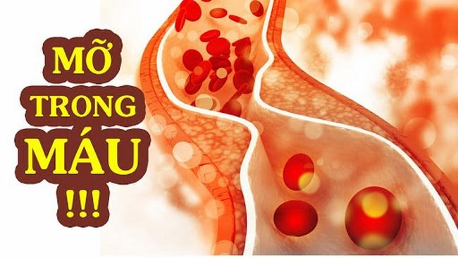Máu mỡ cao là do lượng cholesterol trong máu, làm tăng các nguy cơ về bệnh tim và đột quỵ