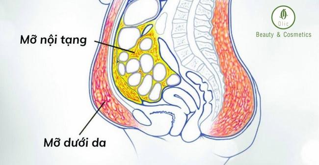 Mỡ nội tạng là nguyên nhân gây nên nhiều bệnh lý nguy hiểm