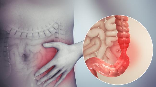 Dứa giúp làm giảm mắc các bệnh ung thư đại tràng ở nam giới