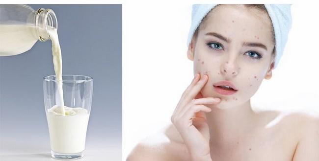 Da mụn có nên rửa mặt bằng sữa tươi không đường?