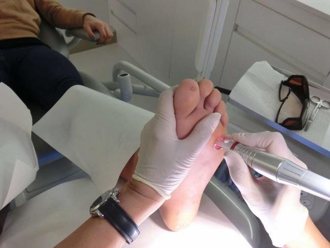 Điều trị mụn cóc bằng laser