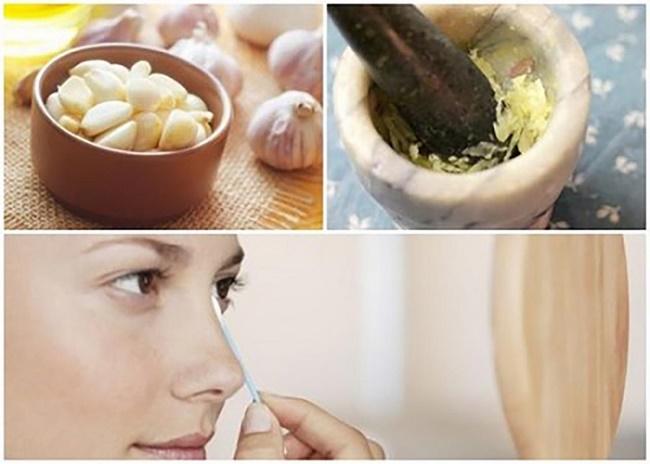 Điều trị mụn hiệu quả bằng tỏi và nước cốt chanh