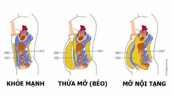 Bật mí phương pháp giảm mỡ nội tạng hiệu quả cho người thừa cân