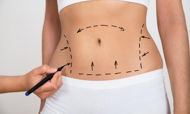 Có nên đi spa giảm mỡ bụng không? Giảm béo tại Spa có hiệu quả không?