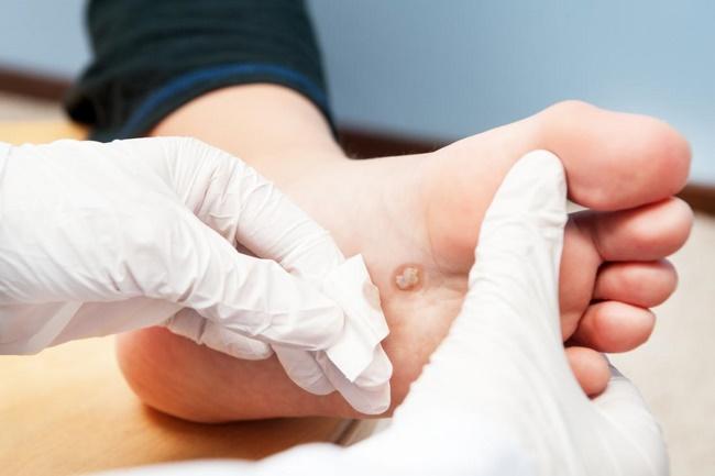 Liệu pháp đông lạnh trị mụn cóc lòng bàn chân