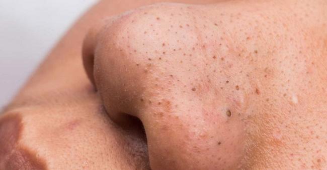 Lột mụn đầu đen quá mạnh có thể gây viêm da, nếu không thực hiện đúng cách