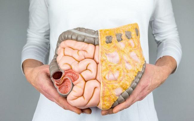 Nước ép có thể làm tiêu hao mỡ thừa trong nội tạng