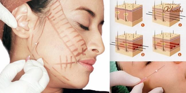 Phẫu thuật căng da mặt tại Khơ Thị