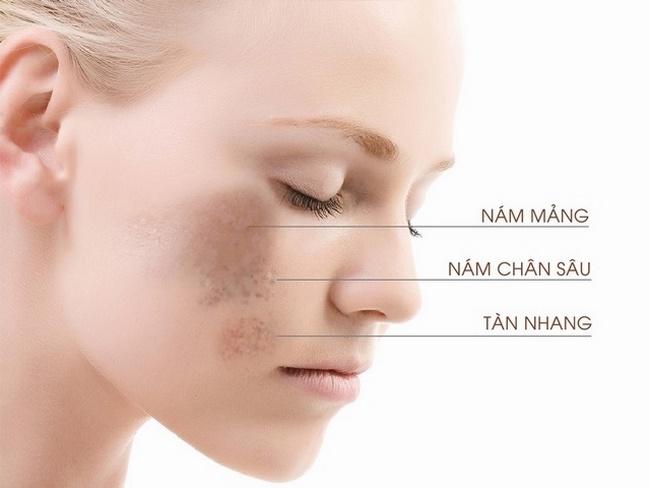 Nám da thường xuất hiện ở phụ nữ tuổi từ 20 - 50, đặc biệt là phụ nữ sau sinh
