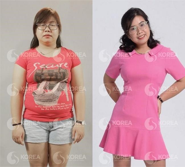 Chị Hồng trước - sau khi giảm béo Max Thin Lipo