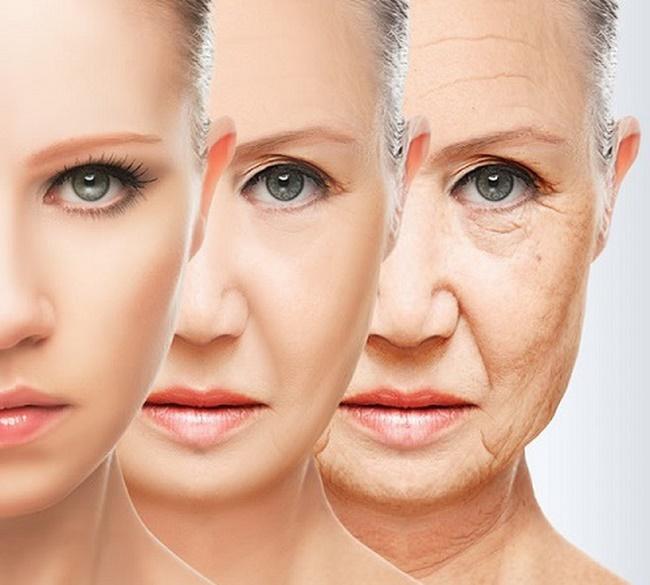 Dấu hiệu lão hóa da bị thâm sạm, nếp nhăn xuất hiện từ ít đến nhiều dần lên