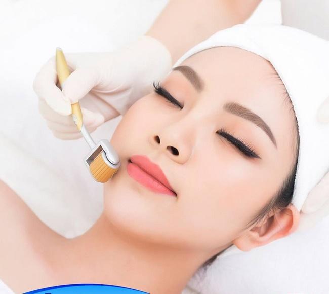 Lăn kim siêu vi điểm sẽ cải thiện làn da bị nám, sạm và tăng cường sản sinh collagen
