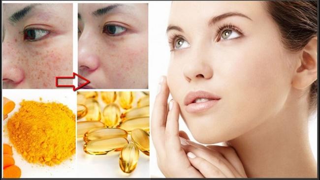 Mặt nạ vitamin E và nghệ