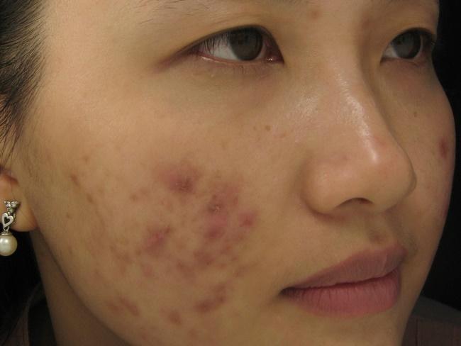 Mụn thâm xuất hiện do cách chăm sóc da chưa đúng làm kết cấu collagen và elastin bị phá vỡ