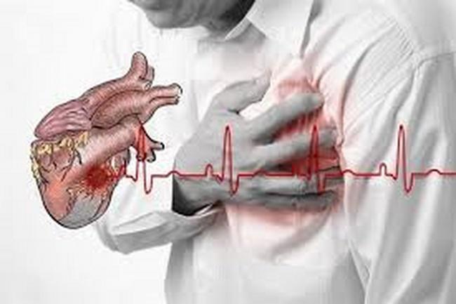 Những người bị bệnh tim, sức khỏe yếu không nên nhảy dây