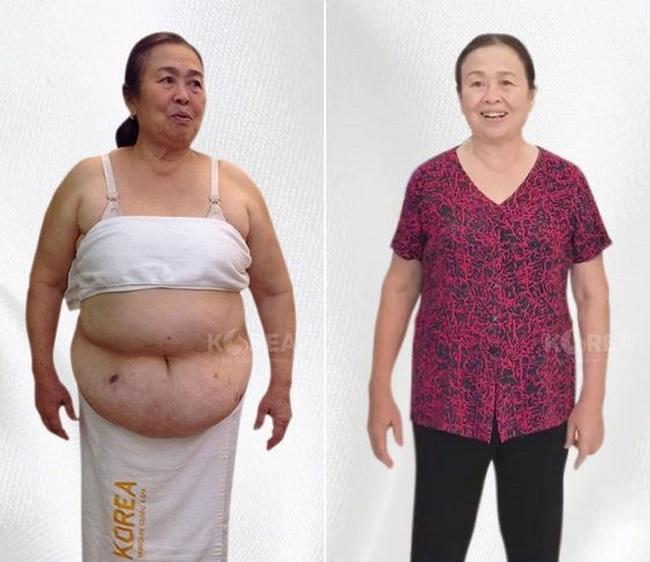 Cô Hồng chia sẻ hành trình giảm béo tại hội thảo Giảm béo của Korea