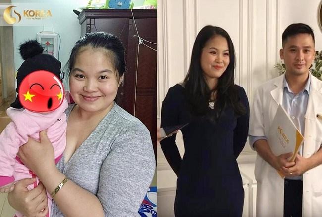 Chị Trang trước và sau khi giảm béo thành công