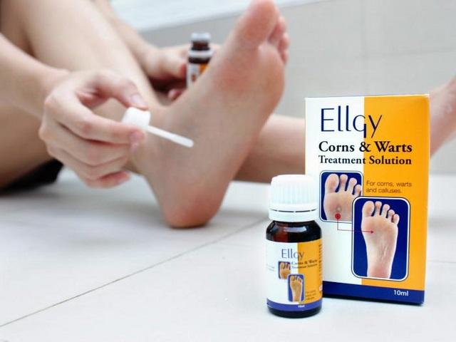 [REVIEW] Thuốc trị mụn cóc Ellgy có tốt hay không?