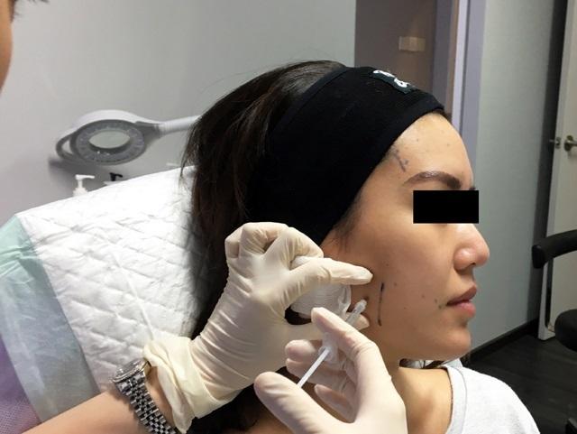 Tiêm Botox thon gọn mặt
