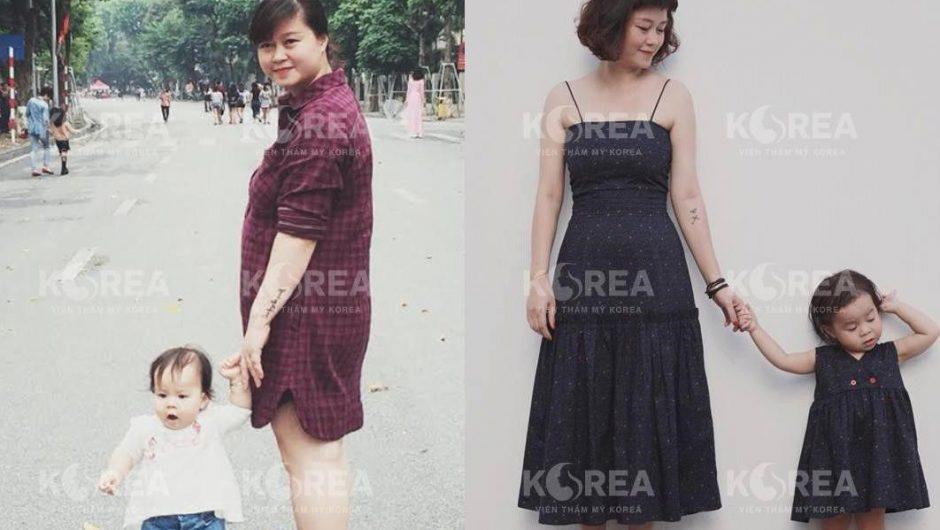 Chị Trang giảm mỡ bụng rất thành công sau khi sử dụng Max Thin Nanomax